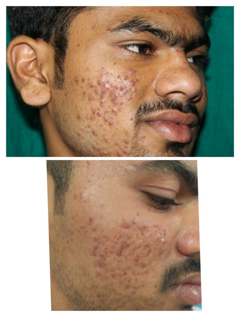 pimples before after 11
