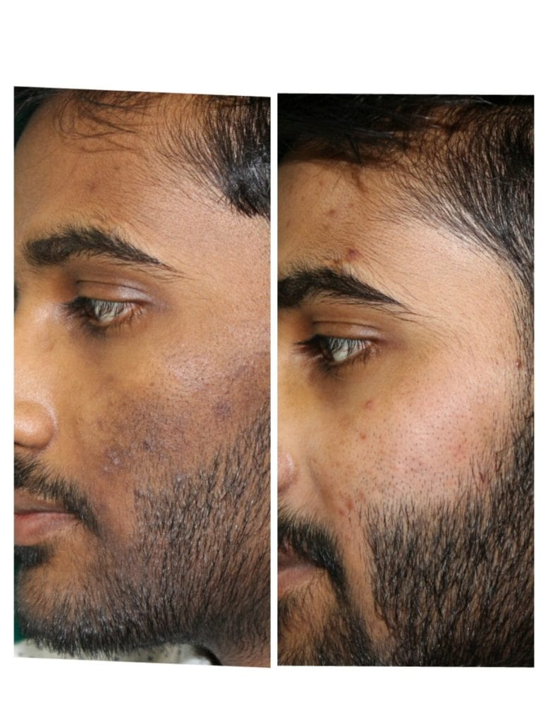 side view of before after pimples 9